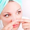 Комедоны на лице — фото, причины, лечение