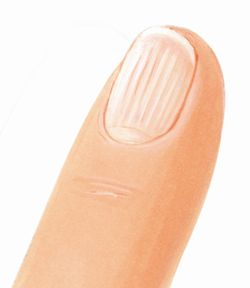 изменение формы ногтя