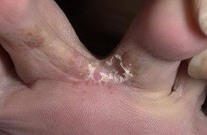 грибок микоз между пальцев