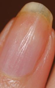 продольные полосы на ногте