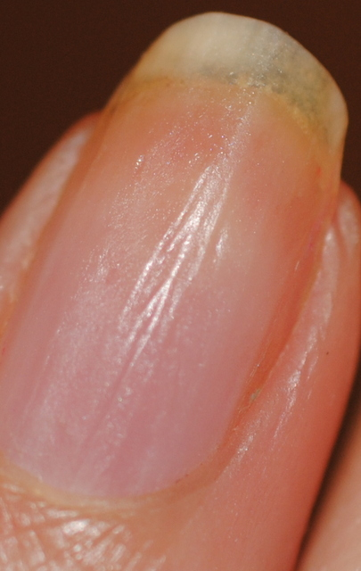 Лечение поперечные бороздки на ногтях рук причины лечение