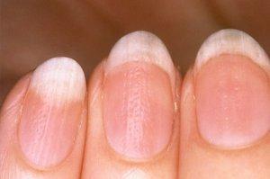 вертикальные борозды на ногтях