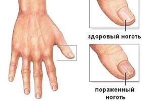 поражение грибком ногтя