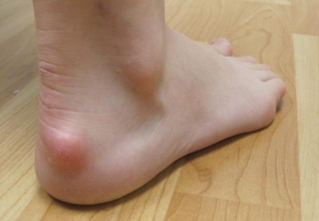Болят пятки: 13 причин и лечение в домашних условиях 98