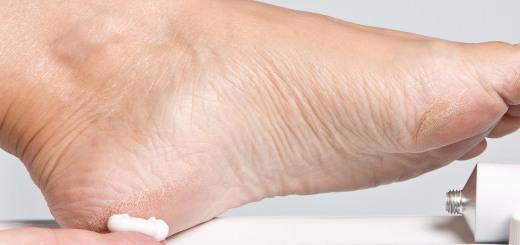 почему болят пятки ног и как лечить