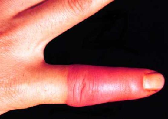 Фурункул на пальце руки