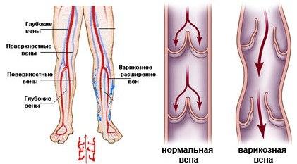 Топ 5 самых эффективных средств от варикоза на ногах