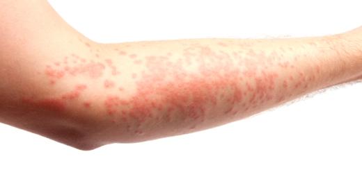 аллергия на руках в виде красных пятен фото