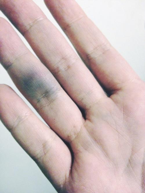 Как лечить лопающиеся сосуды на пальцах рук