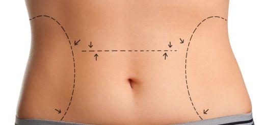 Как подтянуть кожу после похудения в домашних условиях?