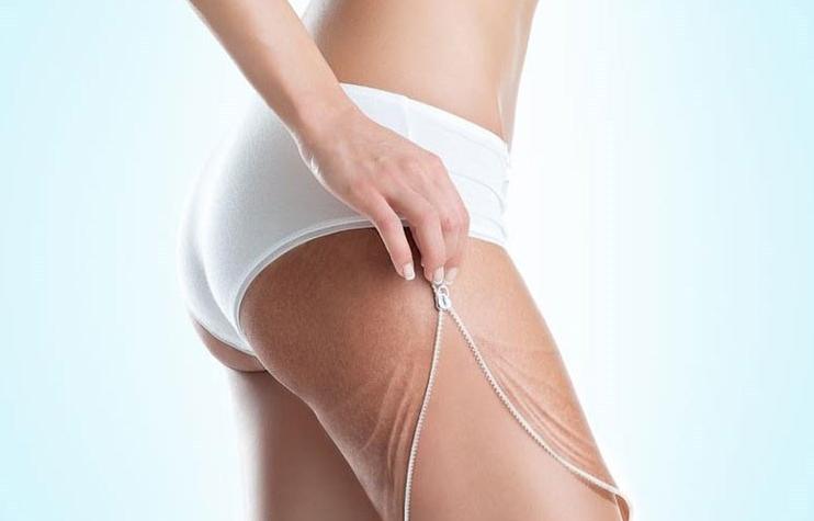 прыщи на попе у женщин причины и лечение