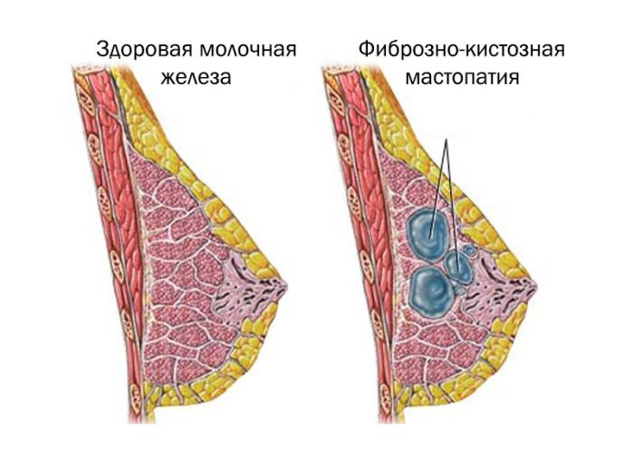 Как лечить мастопатию молочной железы у женщин