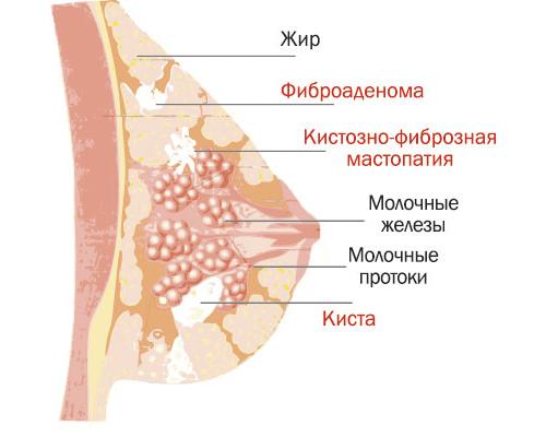 ожирение печени симптомы лечение