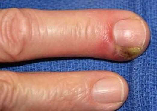 Гной в пальце лечение в домашних условиях 86