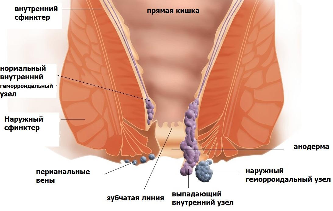 Мазь фурацилиновая при геморрое