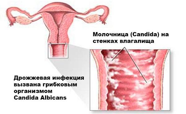 Климакс и молочница