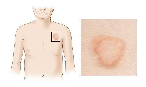 инфекционная аллергия что это такое