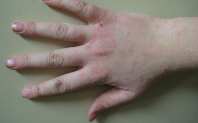 На руках появились мелкие пупырышки и чешутся