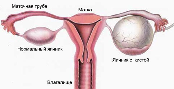 Розовый у человека симптомы лечение фото