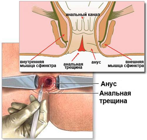 Хроническая трещина анального отверстия лечение народными средствами