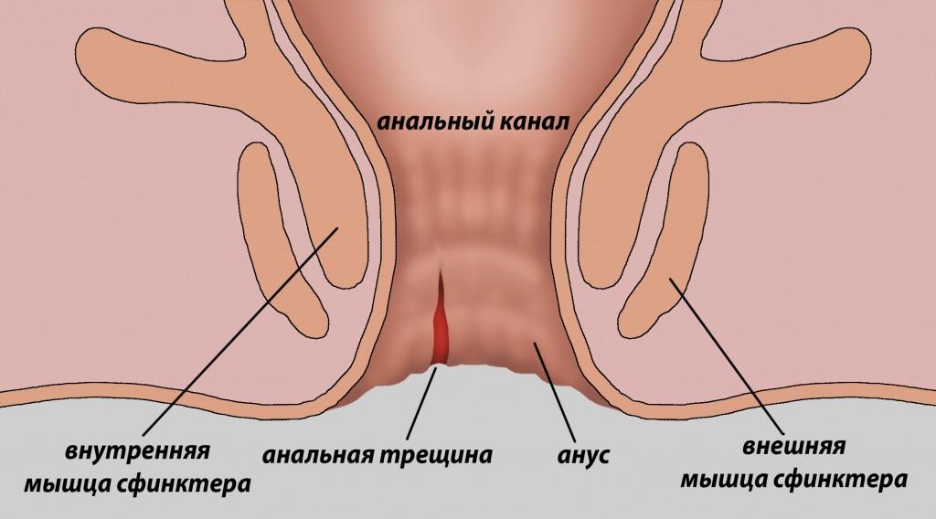 Народное лечение трещены анального отверстия