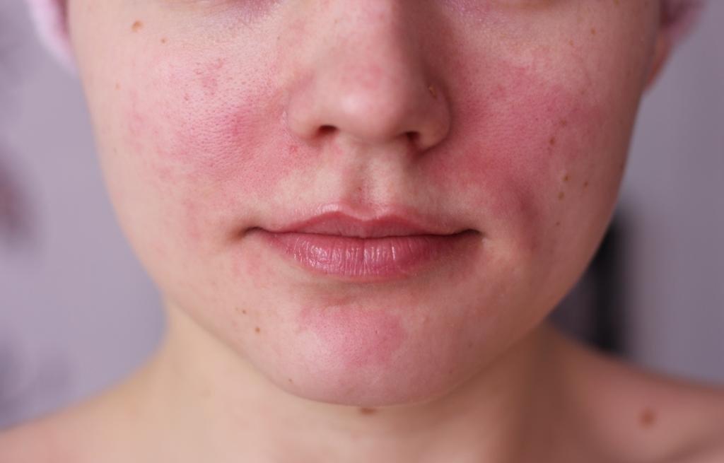 Лечение проблемной кожи лица с чего начать