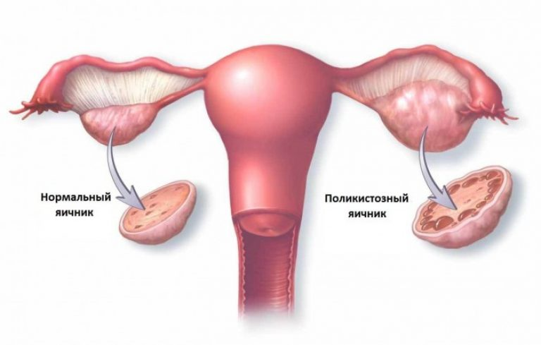 Как лечить кисту на яичнике у женщин