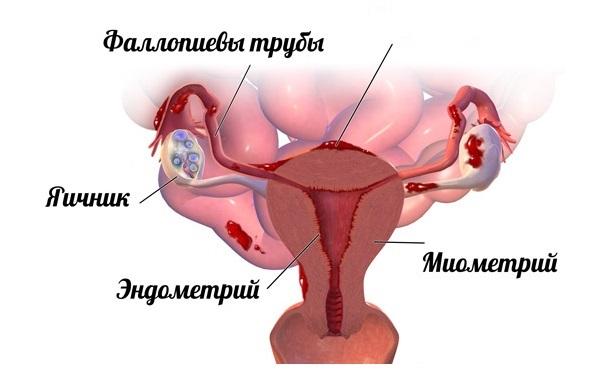 При эндометриозе обильные месячные что делать