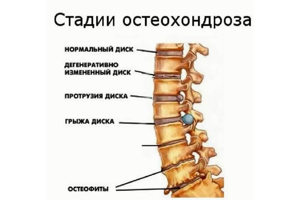 Что такое остеохондроз суставов рук как его лечить