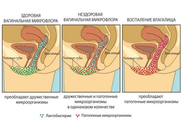зеленоватые выделения при беременности во втором триместре фото