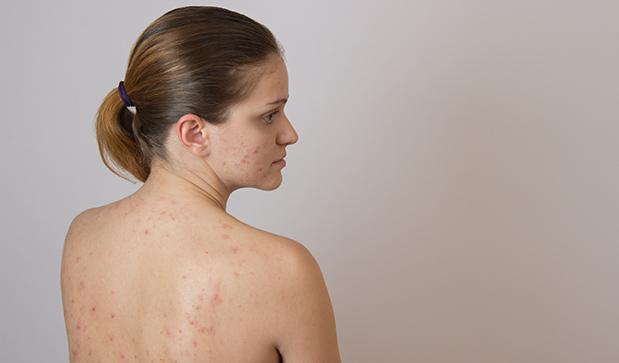 Прыщи на спине у женщины: причины, как лечить в домашних условиях ...