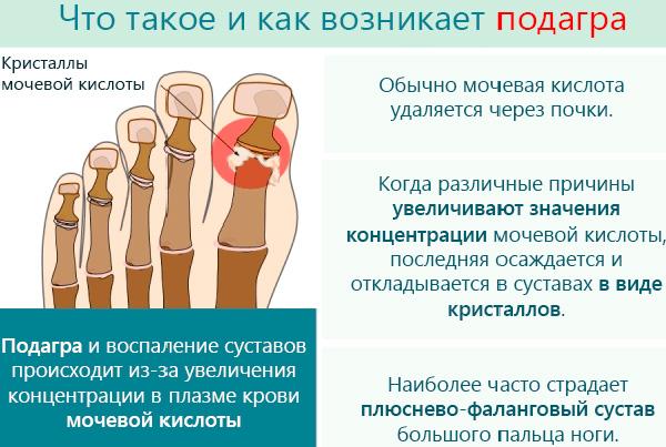 Подагра: признаки, причины и лечение у женщин | Феломена