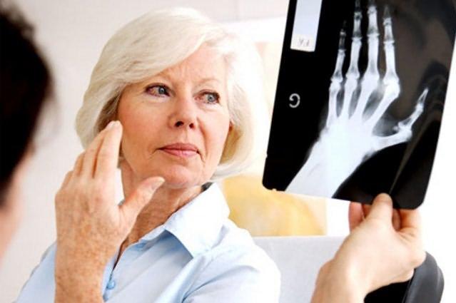 подагра признаки и лечение у женщин