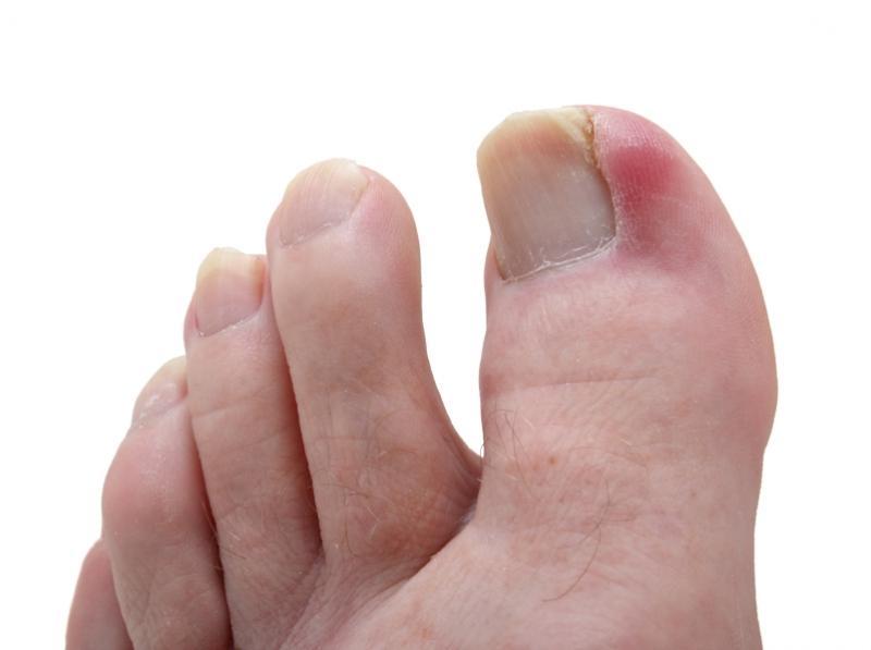 Отзывы грибок ногтей на ногах лечение препараты недорогие