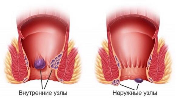 Лечение сердца методом бутейко