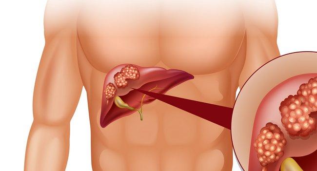 холестерин повышен симптомы какие