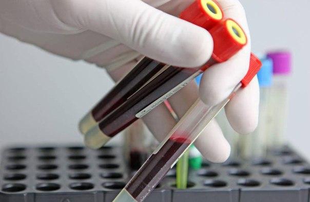 норма лейкоцитов в крови у женщин после 50 лет таблица