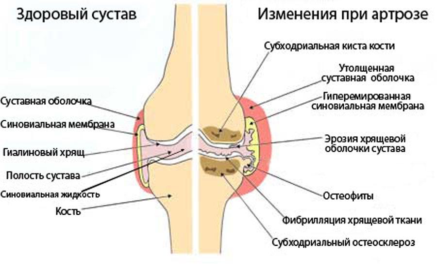 Как лечить артроз коленных суставов в домашних условиях опухшие суставы пальцев ног