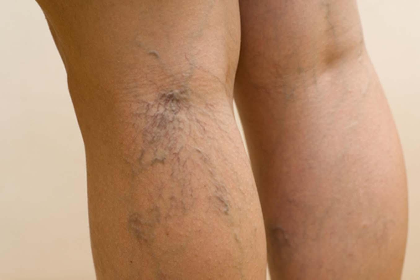 лечение варикоза вен на ногах народными средствами