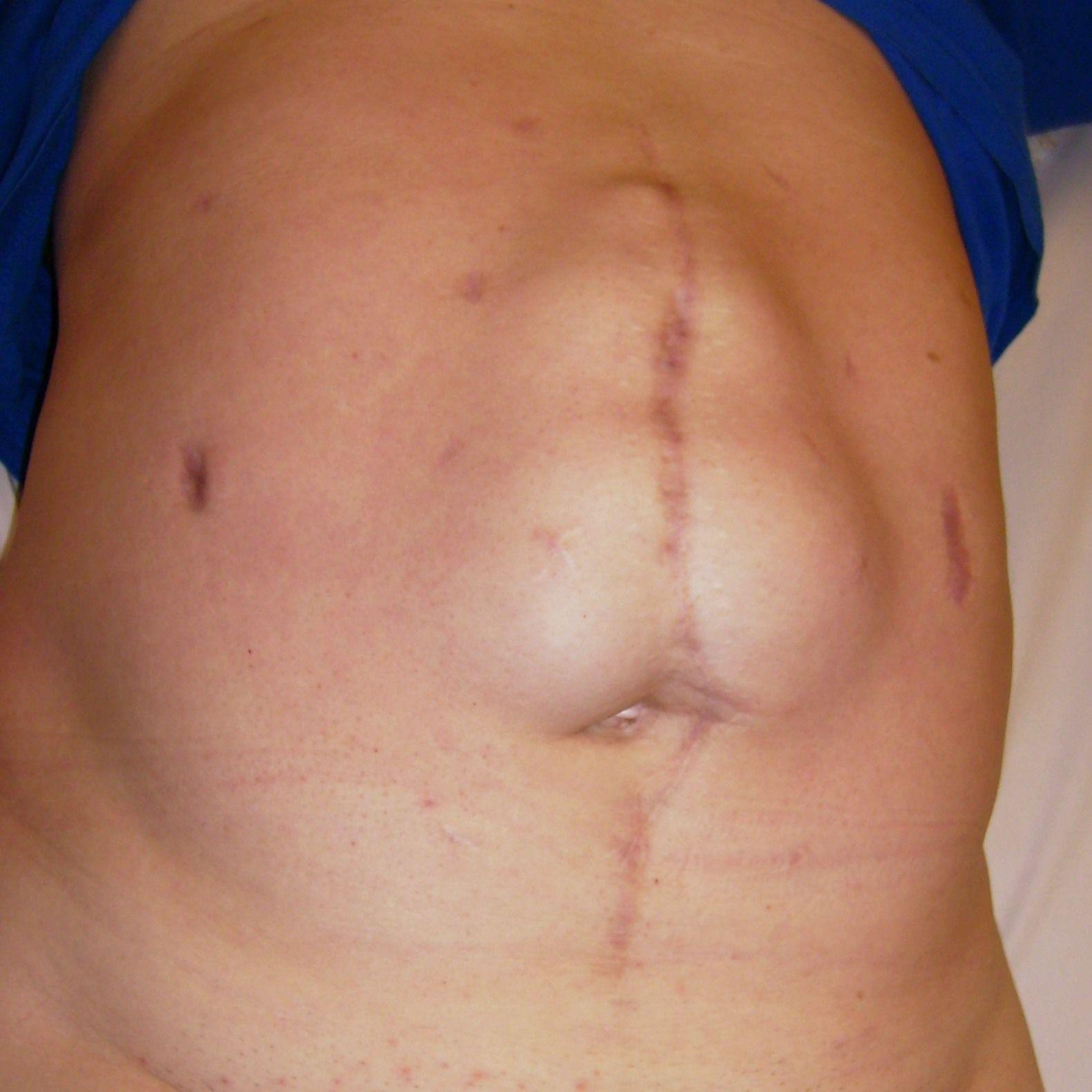 что можно есть после операции грыжи на животе