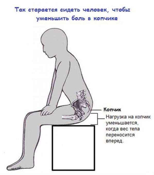 Боль при сидении копчика лечение в домашних  877